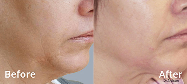 Before / After picture skin tightening treatment around the chin with FORMA