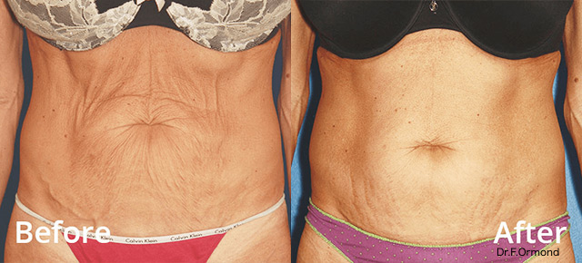 Before / After picture Non-surgical liposuction treatment with FORMA