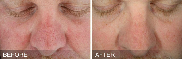 Before / After picture of Deep Pore Cleansing on the nose with Hydrafacial