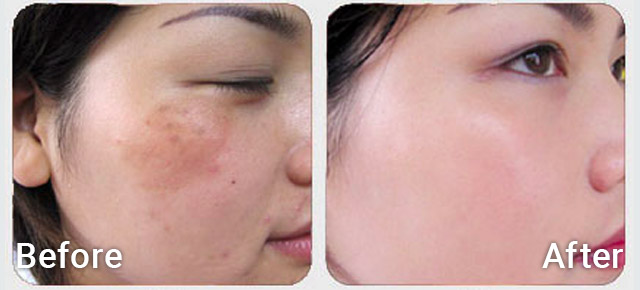 Before / After picture of melasma treatment with Tranexamic acid Iontophoresis
