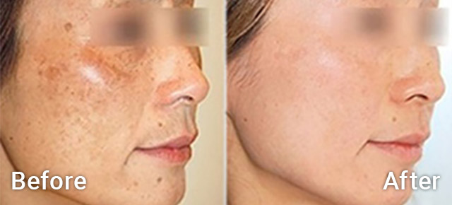 Before / After picture of Age spots treatment with Iontophoresis