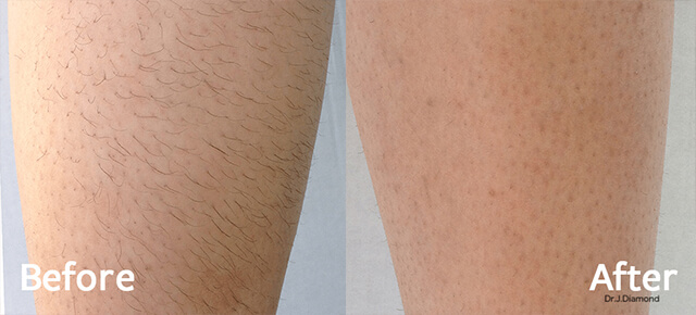 Before / After picture of Leg hair removal with DIOLAZE  Laser Hair Removal