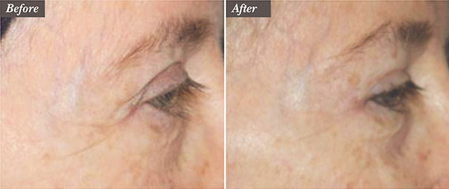 Before / After picture of Microneedling treatment for wrinkles around the eyes