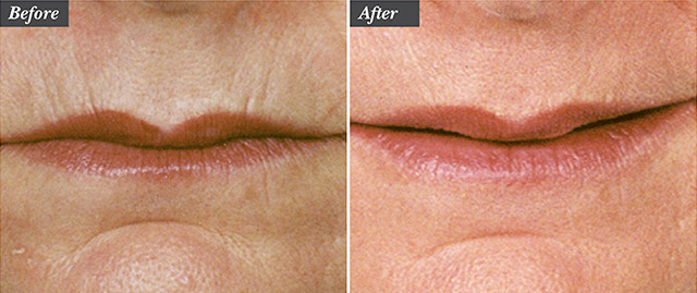 Before / After picture of Microneedling treatment for wrinkles around the lips