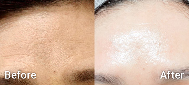 Before / After picture PRP therapy and microneedling for winkles on forehead