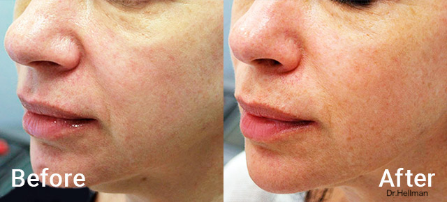 Before / After picture sagging skin treatment on the face with Morpheus8