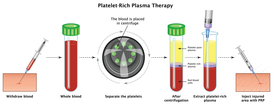 Picture of process of the PRP therapy