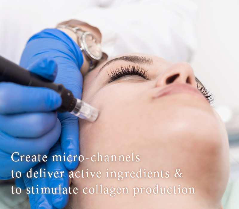 Microneedling treatement on a woman