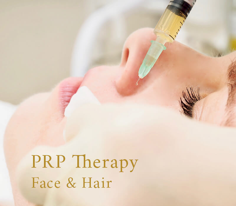 Picture of PRP therapy done on the face